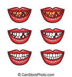 arte, icone, mancante, -, pop, guastato, labbra, sorridente, collezione, femmina, denti, denti, rosso