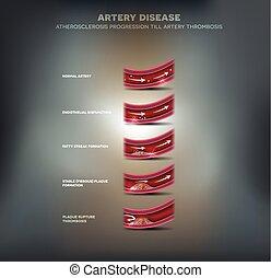 arterie, krankheit