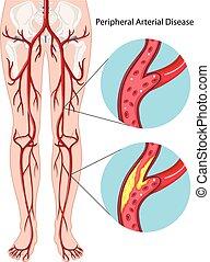arteriell, diagramm, peripher, krankheit