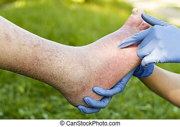 Arteriosclerotic Old Foot - Doctor examining with gloves old...