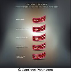 Artery disease, Atherosclerosis progression, narrowed artery...