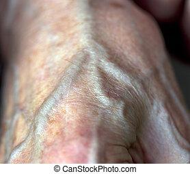 artery - old hands
