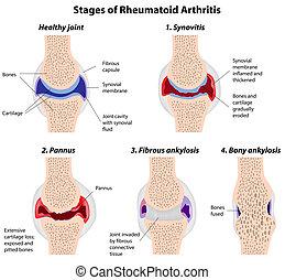 arthrite, étapes, rhumatoïde
