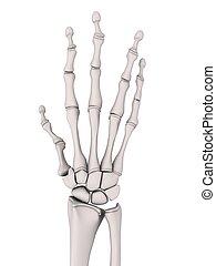 arthrite
