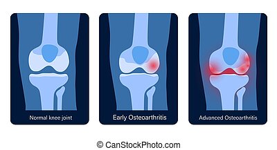 arthrite, jointure genou