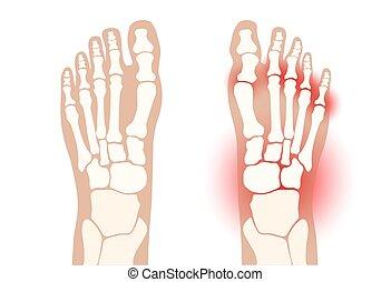 arthrite, pied, concept