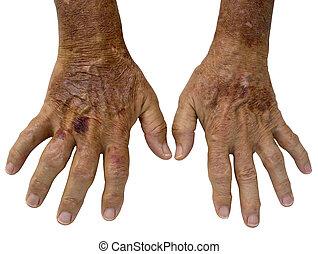 arthrite, taches, personnes agées, mains, mâle, rhumatoïde