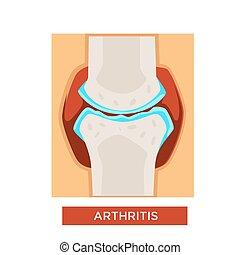 Arthritis bones or joint treatment rheumatology vector...