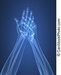 arthritis, hände, röntgenaufnahme, -