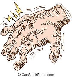 An image of a disfigured arthritis hand.