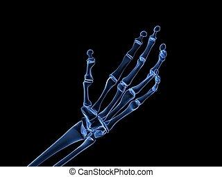 arthritis, handröntgenaufnahme, -