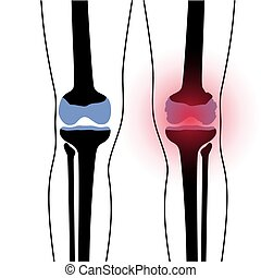 Arthritis in knee joint - X ray of normal knee and arthritic...
