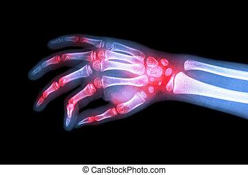 arthritis, kind, röntgenaufnahme, gelenk, (, rheumatoid, film, hand, gouty, mehrfach, arthritis