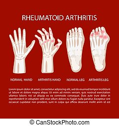 ARTHRITIS LEG HAND Rheumatoid Medicine Education Vector ...