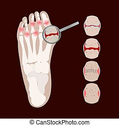 ARTHRITIS LEG Rheumatoid Medicine Education Vector Scheme ...