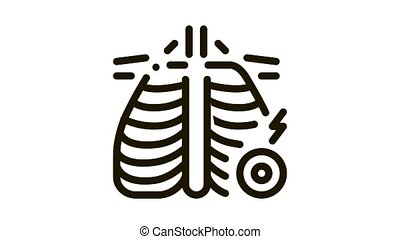 arthritis of rib-sternum joint Icon Animation. black arthritis of rib-sternum joint animated icon on white background