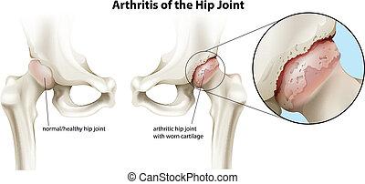 Arthritis of the hip joint - Illustration of the arthritis...