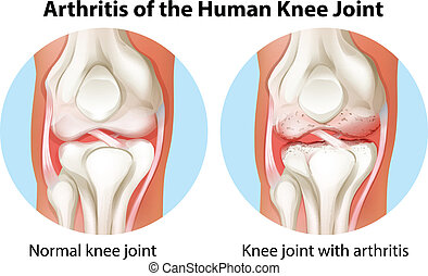 Arthritis of the human knee joint - Illustration of an...