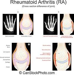 arthritis., reumatóide