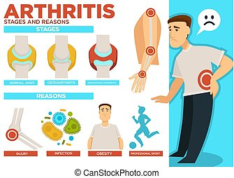 Arthritis stages and reasons of disease poster vector -...