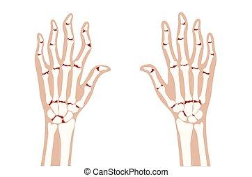 arthrits, strahl, x