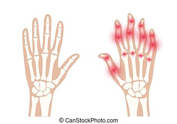 Arthrits x ray - Pain and inflammation in hand. Normal and ...