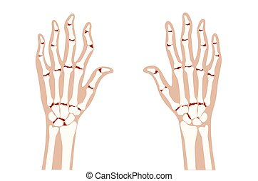 Arthrits x ray - Pain and inflammation in hand on x ray. ...