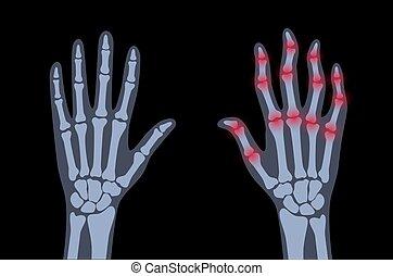arthrits, x strahl