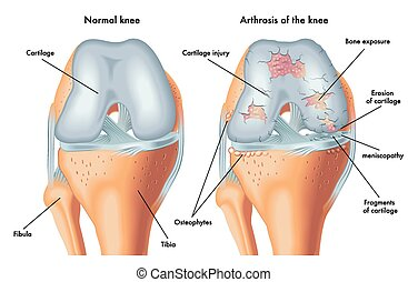 arthrosis of the knee - medical illustration of the symptoms...