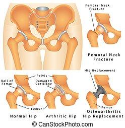 articolazione coxofemorale, articolazione dell'anca