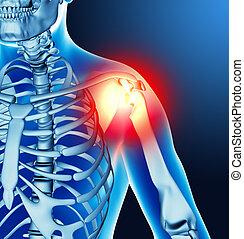 articolazione, dolore, braccio