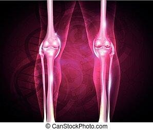 articolazione, doloroso, osteoarthritis