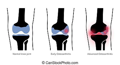 articulação joelho, artrite