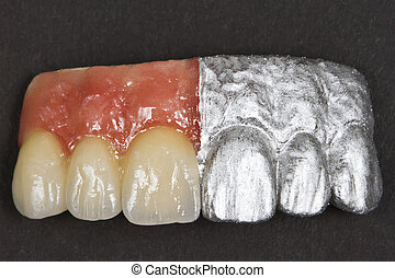 ceramic front teeth and gums