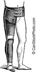 Artificial Leg for Full Hip Disarticulation, vintage engraving