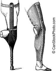 Artificial Legs for Below-knee Amputation, vintage engraving...