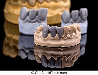 artificiel, dent