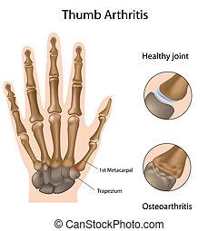 artrite, base, polegar, eps8