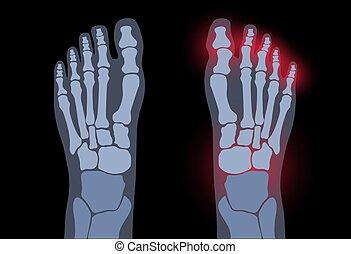 artrite, conceito, pé
