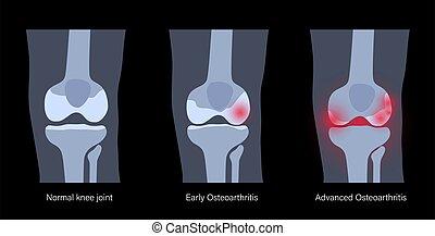 artrite, conjunto, joelho
