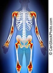 artrite, junções, dor, anatomia, macho, conceito