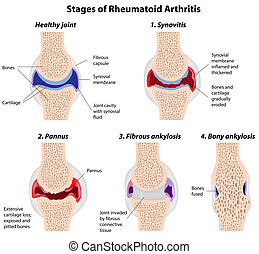 artrite, palcoscenici, rheumatoid