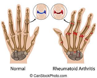 artrite reumatóide, de, mão, eps8