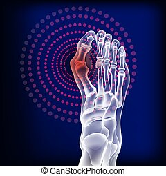 artritis, huesos del pie, rheumatoid