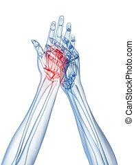 artritis, manos, radiografía, -