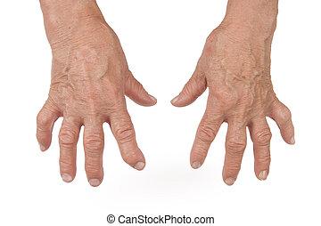 artritis, mujer, rheumatoid, viejo, manos, deformado