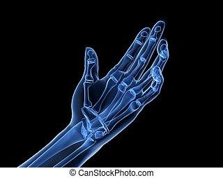 artritis, -, radiografía, mano
