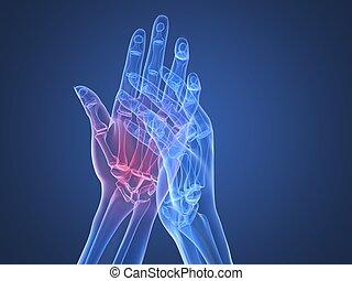 artritis, -, radiografía, manos