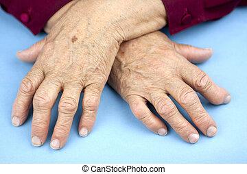 artritis, rheumatoid, manos, mujer, deformado