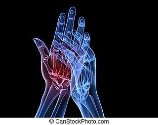 artritis, -, x-ray, hænder